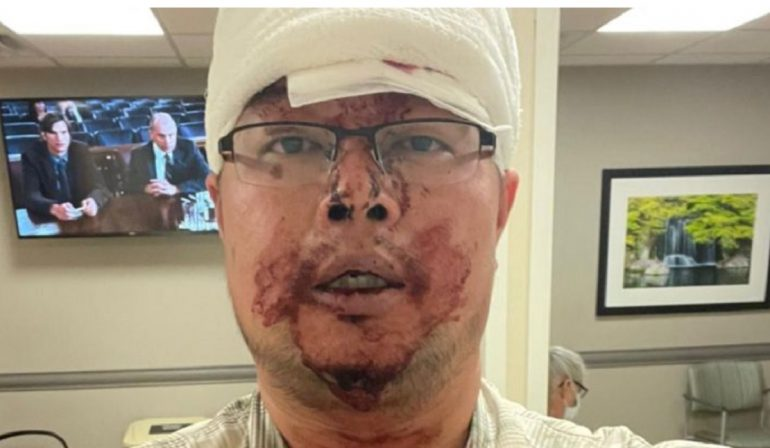 Lyft Driver Left Covered in Blood and Battered After Attack by Passenger